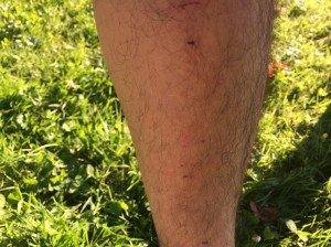 Hautverletzung